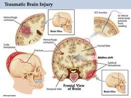 Traumatic Brain Injury Tbi Intensive Care Hotline