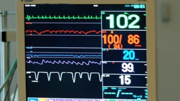 Intensive Care Monitor