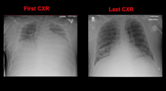 A case example in ARDS and respiratory failure