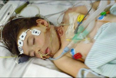 My Son is in ICU and Ventilated. Why Does the ICU Team Cannot Wean my Son Off the Ventilator?