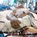 My Husband In ICU Is Getting Better From Covid-19 But Why Is He Not Waking Up?