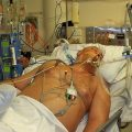 My Husband is in Coma in ICU. Can the Neurologist Best Help Him Improve His Condition?